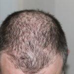 Come fermare il diradamento dei capelli